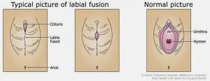 Ureter Suomeksi