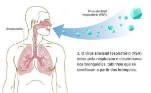 bronquiolite (2)