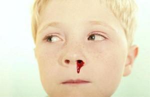 651571-o-sangramento-nasal-e-mais-comum-em-criancas