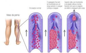 exemplo-de-trombose-venosa-profunda