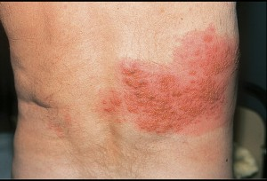 varicella-zoster-virus-infection-chest-wall