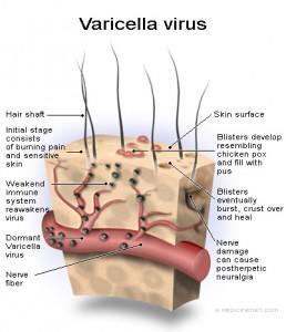 varicella_virus-shingles1