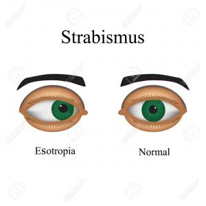 Diseases of the eye - strabismus. A variation of strabismus - Esotropia.