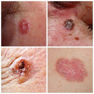 A incidência de patologias em fundações rasas causadas por sulfatos e cloretos 7