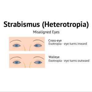 strabismus-heterotropia1
