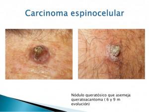 carcinoma-basocelular-y-espinocelular-32-638