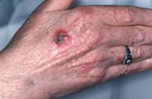 epidermoide