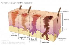 skin-neoplasm-comparison