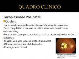 toxoplasma-gondii-13-638