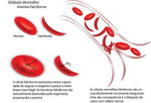 anemia-falciforme_web