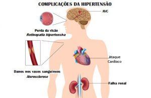 hipertensao-500x325