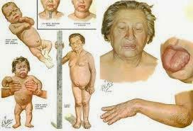 hipotireoidismo-2