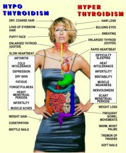 hyper_hypo_thyroid