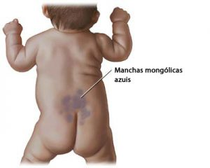 manchas_mongolicas