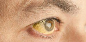 ictericia-olhos-amarelos-1484592479925_615x300